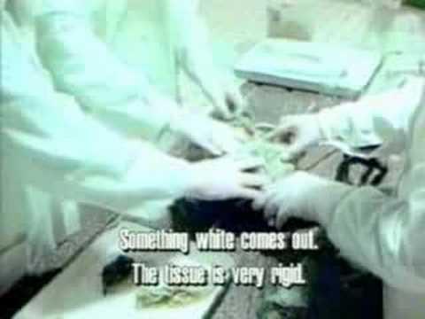 Russian KGB Alien Autopsy Real UFO